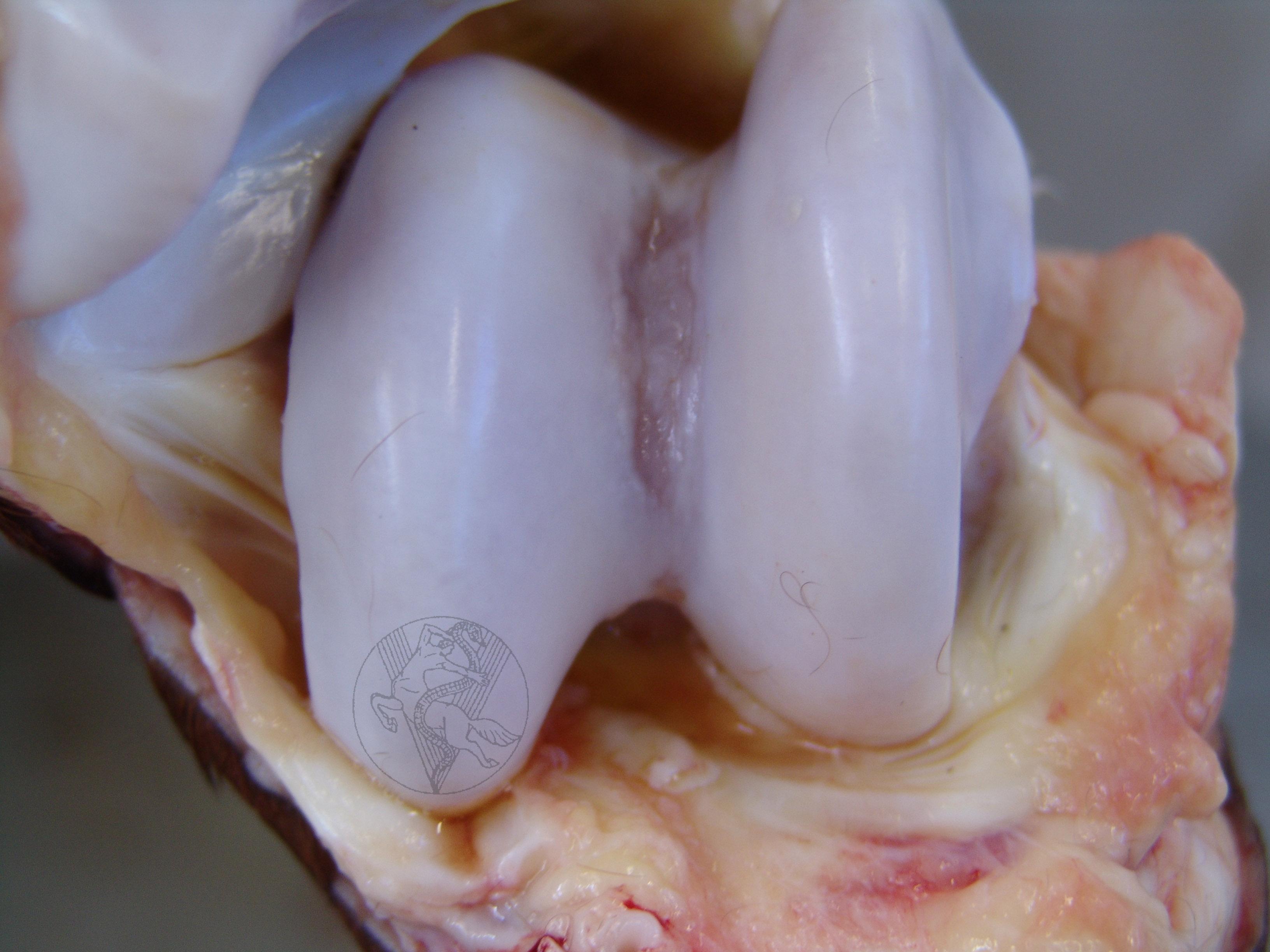 kenőcső hellebore-nal az osteochondrozistól