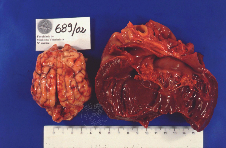 Endocarditis Vegetations Vegetative Endocarditis of